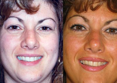 Eyeliner and Lip Liner