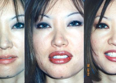 lips05