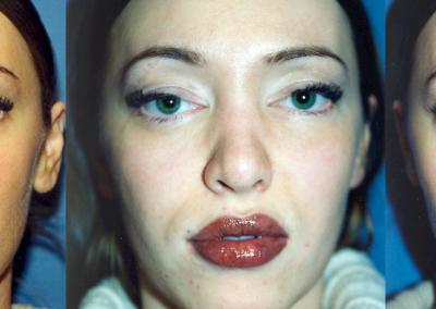 lips07