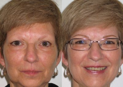Permanent Eyebrows - Before and After
