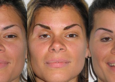 Eyebrows - Before, During and After