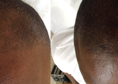 Scalp Micropigmentation - Before and After