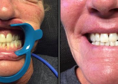 teeth05