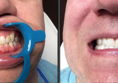 teeth07