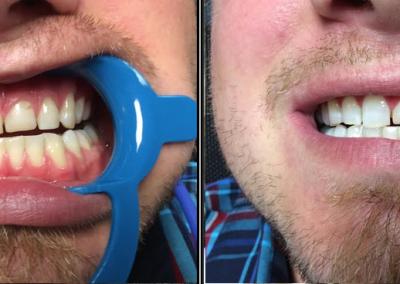 teeth08